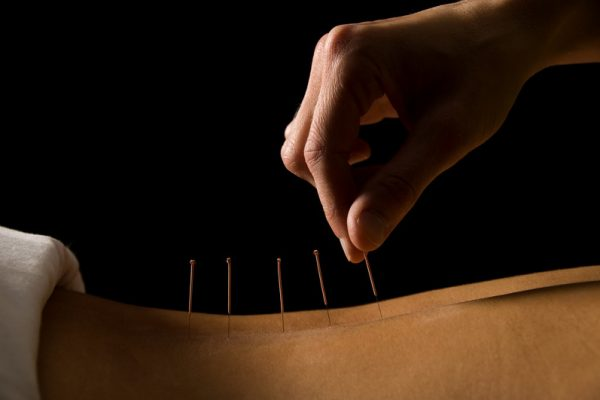 Sports Medicine Acupuncture