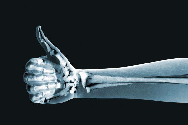 Healthy Bones For Life